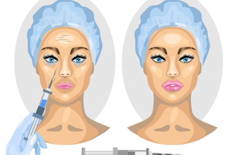 Před a po injekční aplikaci kyseliny hyaluronové