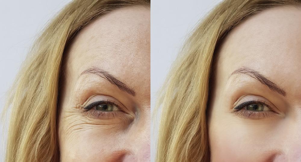 Užívání kyseliny hyaluronové a redukce vrásek v oční okolí: PŘED a PO.